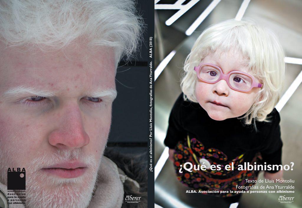 Portada y contraportada del libro ¿Qué es el albinismo?